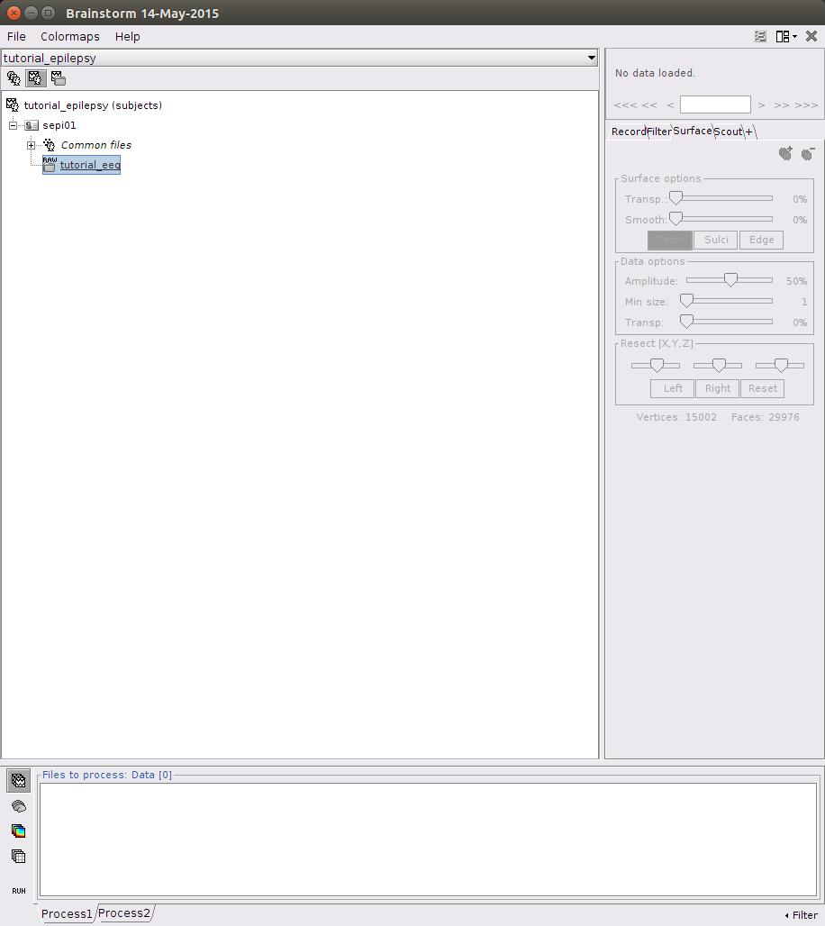 Error message in loading tutorial_eeg bin file from the EEG/epilepsy