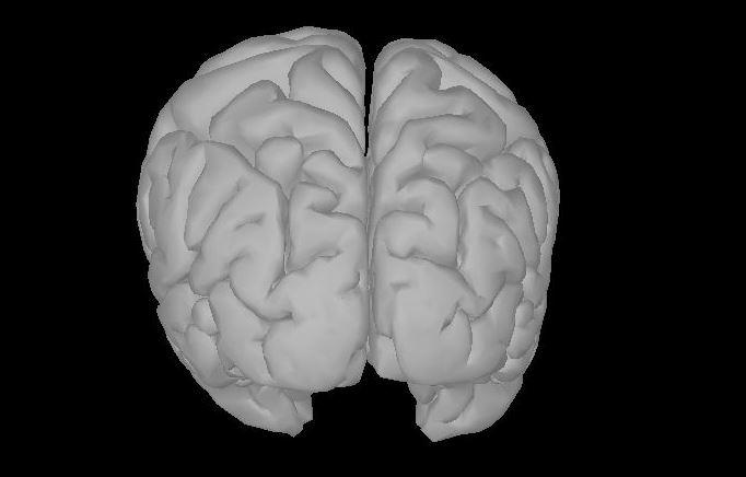 Distorted warped anatomy - Discussions - Brainstorm